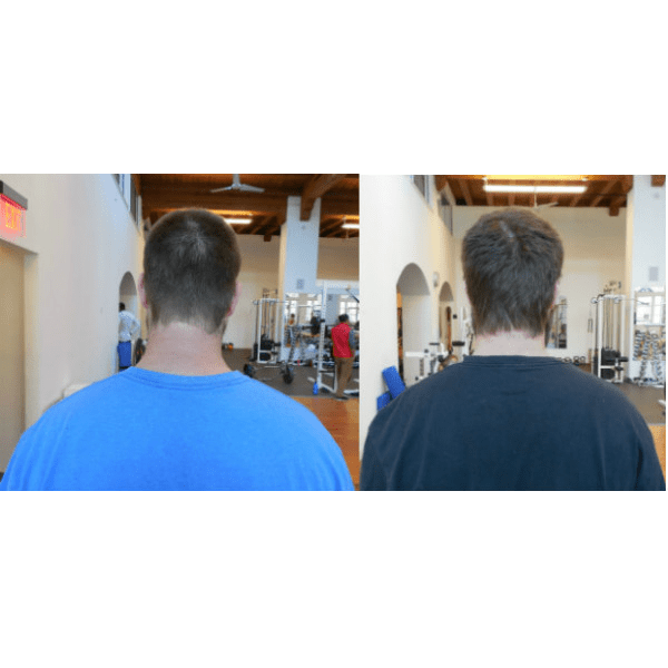 Andrew's head posture before and after 6 weeks of Gyrotonic training