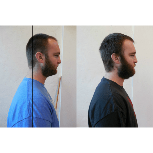 Side view of the improvements in Andrew's posture after 6 weeks of Gyrotonic training